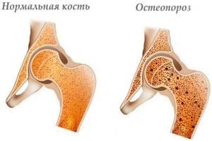 Остеопороз тазобедренного сустава: причины и признаки появления патологии, степени и способы борьбы с болезнью, лекарства и гимнастика