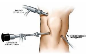 Синовэктомия: разновидности вмешательсвта и суть операции, возможные осложнения и реабилитация, противопоказания к процедуре
