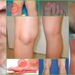 Киста голеностопного сустава: причины появления новообразования, характерные симптомы и методы диагностики, консервативные и народные способы лечения, показания к операции