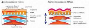 Кинезиотейпирование при грыже позвоночника: польза процедуры и противопоказания к назначению, схема наклеивания пластырей и отзывы об эффективности терапии