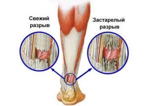Разрыв ахиллова сухожилия: фото до и после, операция, отзывы пациентов, хирургическое и медикаментозное лечение