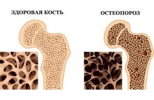 Таблетки Остеогенон: побочные действия, взаимодействие с другими препаратами, инструкция, особые указания, состав, цена и механизм действия