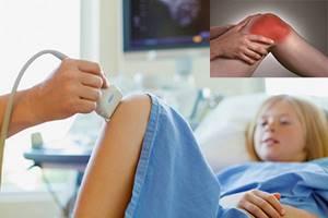 Прививки при артрите: выбор вакцинации, подготовка, особенности введения при заболевании, когда противопоказана, рекомендации врачей