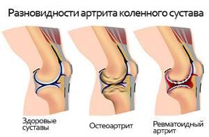 Воспаление суставов ног: причины, симптомы и стадии развития патологии, диагностические мероприятия, лечение и предупреждение заболевания в домашних условиях