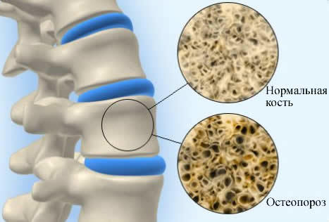 Уколы от остеопороза: особенности проведения иньекций, обзор препаратов и их описание, названия самых эффективных лекарств