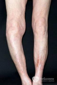 Болезнь Педжета костей: клинические признаки болезни и медикаментозная терапия, ортопедические средства и показания для операции, последствия и прогноз