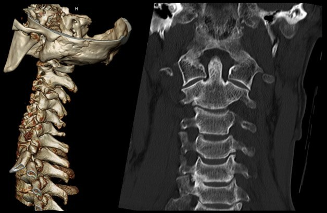 Вертебро-базилярная недостаточность на фоне остеохондроза шейного отдела: что это такое и как лечить, причины и клиническая картина, методы терапии