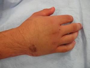 Перелом кисти: классификация и разновидности травм, методы диагностики и отличия от ушиба, первая помощь и последующая теарпия, реабилитация