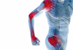 artrotok (Артроток): форма выпуска и состав, действие и эффективность препарата, противопоказания и побочные действия
