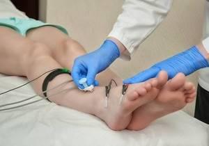 Немеет нога от бедра до колена: причины потери чувствительности, сопутствующие симптомы и диагностические мероприятия, способы лечения и профилактика, возможные последствия