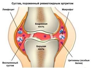 Фолиевая кислота в лечении артрита: действие и описание препарата, лекарственная форма и показания к применению, противопоказания и дозировка
