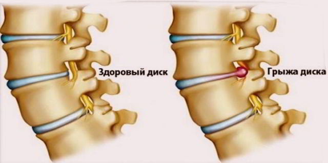 Последствия остеохондроза шейного, грудного и поясничного отделов позвоночника: как влияет болезнь на жизнь человека, опасные осложнения для здоровья и прогноз