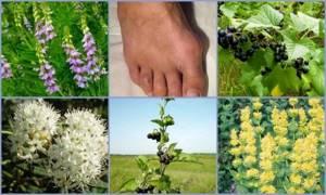 Принципы лечения подагры с помощью целебных трав: рекомендации по выбору растений, рецепты народной медицины и способы их применения, меры предосторожности