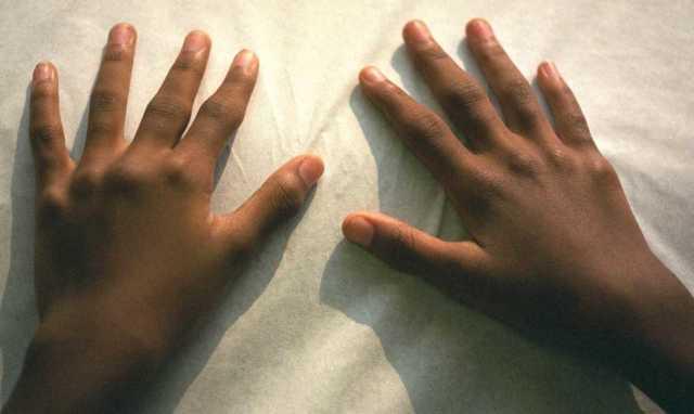 Подагра на руках: причины и симптоматика болезни, современные принципы лечения и профилактики, народные средства и принципы питания