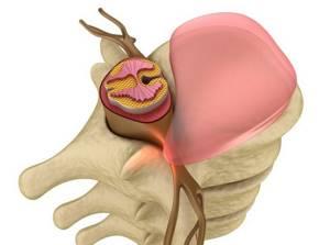 Циркулярная протрузия межпозвонковых дисков: что это значит и стоит ли волноваться, симптомы, разновидности и способы лечения патологии