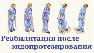 Санаторное восстановление после эндопротезирования тазобедренного сустава: важность методики, основы реабилитационных программ, правила выбора клиники и средняя стоимость процедур