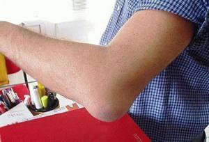 Синовит локтевого сустава: причины и признаки, предпосылки к заболеванию асептического типа, консервативное лечение и физиотерапия, народные средства