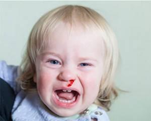 Перелом носа у ребенка: классификация и причины повреждения, первичные и вторичные признаки травмы, оказание первой помощи и методы лечения, возможные осложнения