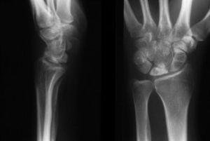 Остеохондропатия (асептический некроз): основные причины, симптомы и лечение микропереломов