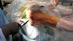 Оперативное лечение перелома шейки бедра: преимущества и недостатки метода терапии, разновидности операций, показания и противопоказания к назначению, стоимость процедуры