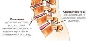 Спондилоартроз дугоотросчатых суставов: что это такое, механизм и причины возникновенияболезни, особенности диагностикии лечебные методики