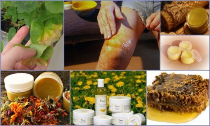 Лечение кисты Бейкера коленного сустава народными средствами: рецепты для наружного применения и для приема внутрь, противопоказания к терапии и прогноз на выздоровление