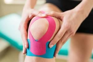 Правила тейпирования колена: когда назначается, подготовка и проведение процедуры, польза и вред, рекомендации экспертов и отзывы об эффективности