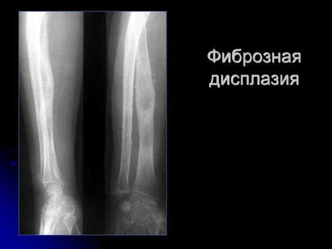 Фиброзная дисплазия костей черепа: что это, виды, причины появления, симптомы, диагностика и методы лечения народными и медицинскими средствами