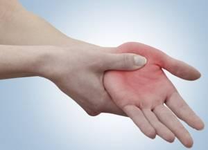 Синовит лучезапястного сустава: виды заболевания и причины появления, консервативные методы и хирургическое вмешательство, народные средства