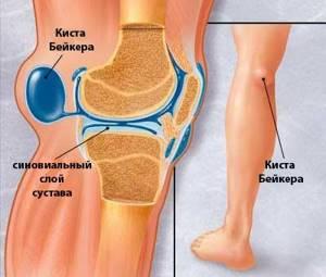 Киста Бейкера коленного сустава: причины развития патологии, характерные симптомы и методы диагностики, современные и народные способы лечения, профилактика болезни