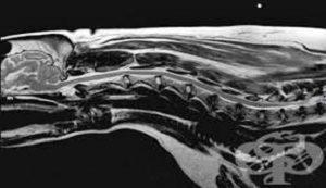 Дорсопатия пояснично-крестцового отдела позвоночника: причины патологии, характерные симптомы и способы диагностики, консервативные методы лечения и показания к операции