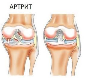 Скованность суставов: что это такое, симптомы, причины и методы лечения народными и медицинскими средствами