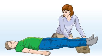 Ушиб бедра: симптомы травмы и методы ее диагностики, рекомендации по оказанию первой помощи и лечение препаратами и народными средствами, возможные осложнения