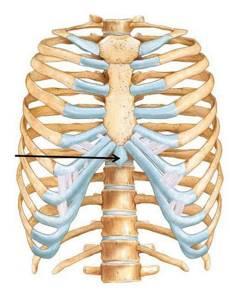 Мечевидный отросток грудины болит при надавливании: причины и основные симптомы, диагностика, лечение и профилактика, рекомендации и отзывы