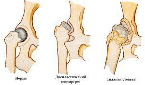 Диспластический коксартроз тазобедренного сустава: этиология и степени развития заболевания, методы диагностики, тактика лечения и меры профилактики