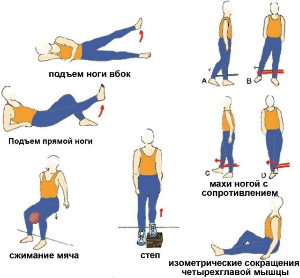 Колено прыгуна: группы риска и признаки патологии, стадии развития недуга и способы диагностики, доврачебная помощь и последующая терапия, прогноз