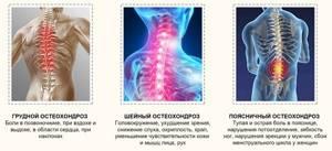 Остеохондроз шейного отдела позвоночника: распространенные симптомы на разных стадиях, методы диагностики, хирургическое лечение и рекомендации по профилактике