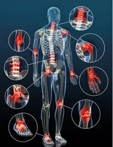 Мази для лечения суставов: обзор эффективных и недорогих препаратов, сравнение составов, цены и отзывы клиентов