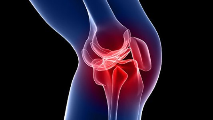 Как лечить мениск колена в домашних условиях: правила оказания первой помощи при травме колена, список медикаментов и рецепты народной медицины, полезные рекомендации
