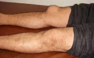 Болит коленная чашечка: причины болевых ощущений, возможные заболевания и методы терапии, народные рецепты и медикаменты для снятия болевого синдрома и воспаления