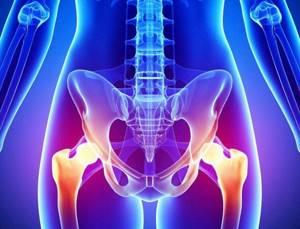 Боль в пояснице: основные причины, о чем говорит симптом, диагностика, лечение и профилактика