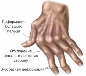 Олигоартрит: что это такое, причины и механизм развития болезни, методы диагностики и лечения, препараты и физиотерапия