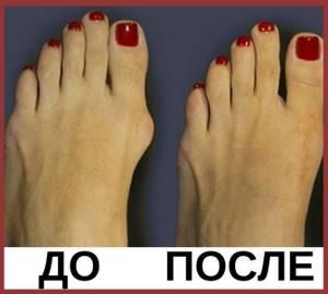 Удаление косточки на большом пальце ноги лазером: суть лазеротерапии, плюсы и минусы метода, показания и противопоказания, восстановительный период
