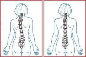 Корсет для позвоночника при сколиозе: виды, описание разных ортопедических конструкций, показания к применению, правила использования и советы врачей
