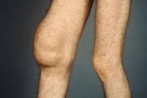 Синовит коленного сустава: симптоматика и провоцирующие факторы, клиническая картина, фармакологические препараты и лечебная тактика