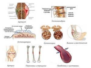 Артроцельс: побочные эффекты и отзывы покупателей, характеристика препарата и фармакологическое действие, показания к применению и противопоказания