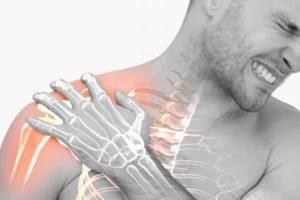 Перелом ключицы: классификация и основные признаки травмы, правила оказания первой помощи и методы лечения, возможные осложнения и реабилитационные мероприятия