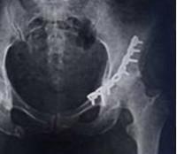 Перелом вертлужной впадины: виды и причины травмы, клинические симптомы и сопутствующие повреждения, методы лечения и реабилитация, возможные осложнения