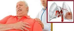 Мышечный спазм: факторы риска и причины возникновения судорог, клиническая картина и правила оказания первой помощи, методы лечения и профилактические мероприятия