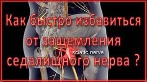 Лечение седалищного нерва по Бубновскому: причины и симптомы, особенности метода, правила выполнения гимнастики при воспалении и в целях профилактики